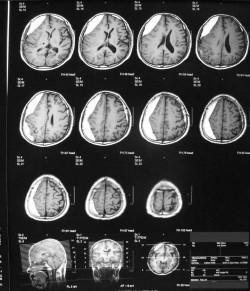 交通事故_後遺障害_高次脳機能障害_画像